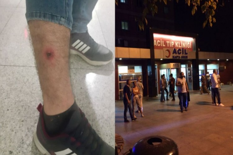Son dakika: İstanbul'da şarbona yakalananlardan biri konuştu: Eti yemedim, temas ettim